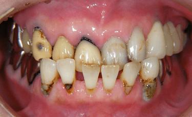 虫歯治療前