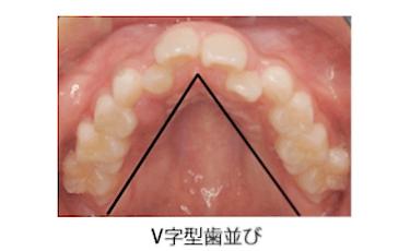 V字型歯並び