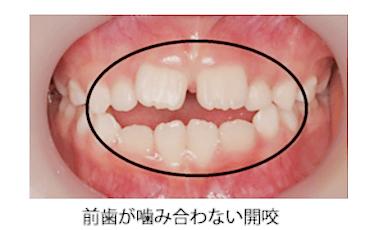前歯が噛み合わない開咬