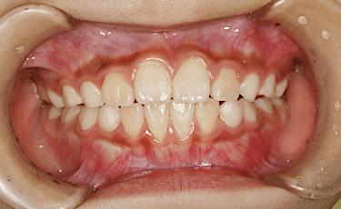 正常な歯列噛み合わせアフター