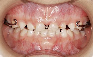 下顎矯正治療例