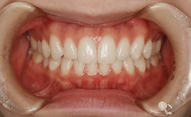 歯並びと健康の密接な関係