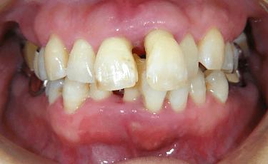 一般歯科(歯周病)1