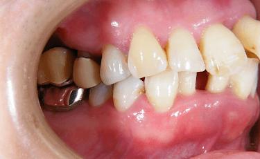 一般歯科(歯周病)2