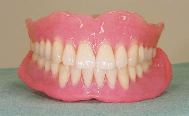 入れ歯治療1