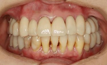 歯科総合治療2