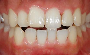 全顎矯正治療1