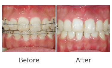 全顎矯正治療2