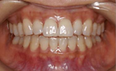 矯正歯科(部分矯正)2
