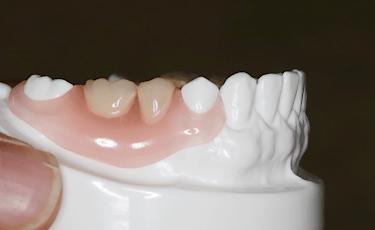 入れ歯であることがほぼわからない種類