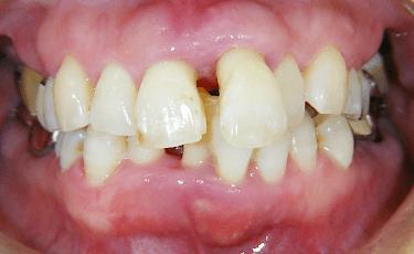 歯周病になった口腔