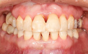 歯周病治療後の口腔