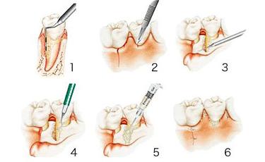 歯石除去の手順