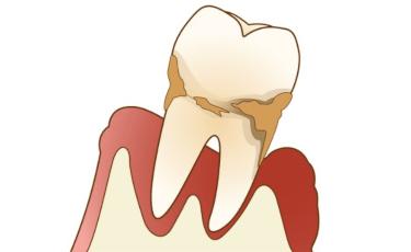 歯周病ゼロへ